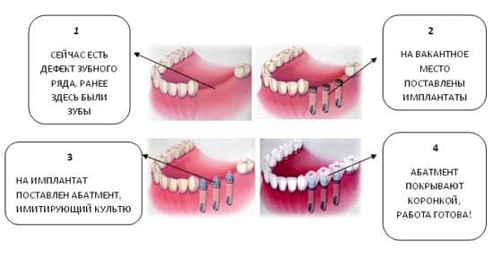 Имплантация зубов - фото