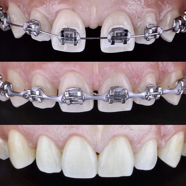 Ортодонтия - фото