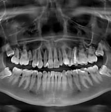 ortopantomogramma